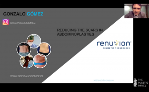 Webinar: Reducing the Scars in Abdominoplasties Using Renuvion Technology. Dr. Gonzalo Gómez